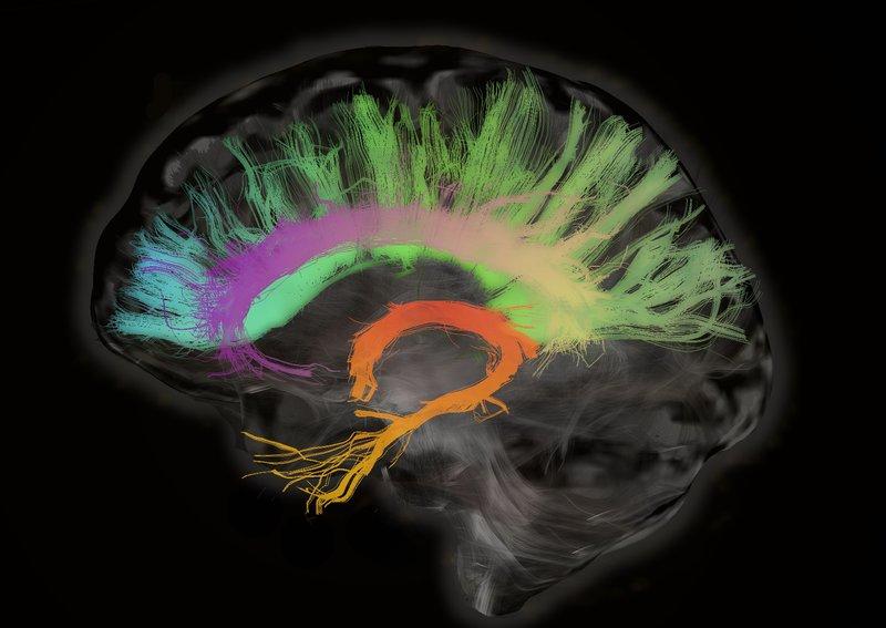 brainscan-2_custom-d29fbebf52a0e35783b1d2c7ed0c64ea73f1ff3c-s800-c85
